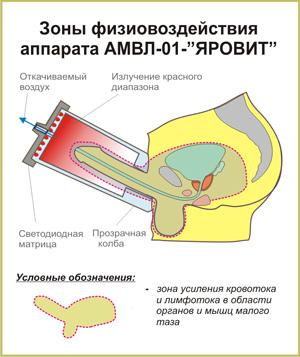 Cхема физиовоздействия аппарата АМВЛ-01-ЯРОВИТ