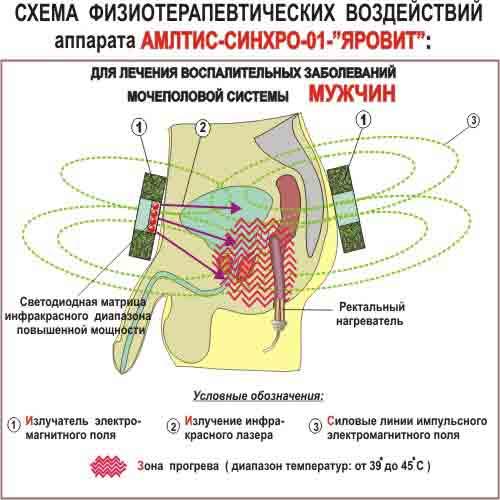 СХЕМА ФИЗИОВОЗДЕЙСТВИЙ аппарата АМЛТИС-СИНХРО-01-«ЯРОВИТ» для лечения мочеполовой системы мужчин