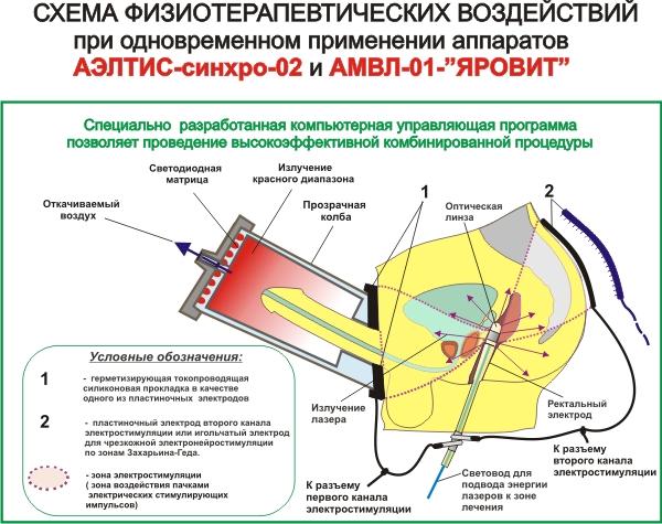 схема физиотерапевтических воздействий при одновременном применении аппаратов АЭЛТИС-синхро-02 и АМВЛ-01-