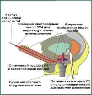 Схема физиотерапевтических воздействий УВЕЛИЧИТЬ